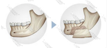 皮质骨截骨术