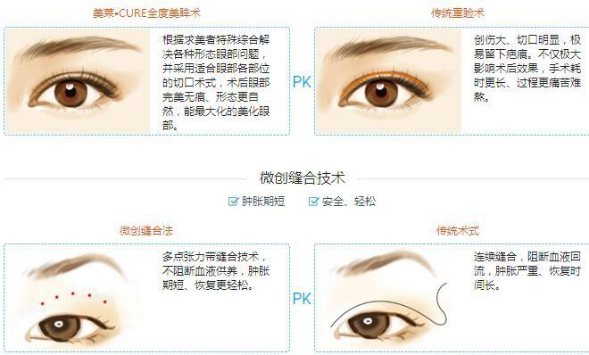 武汉美莱双眼皮优势