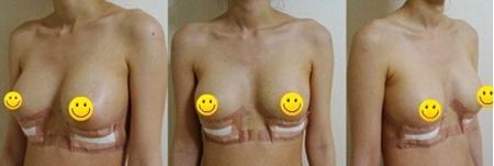 隆胸手术后一周