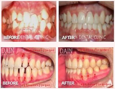 多仁牙科牙齿矫正案例