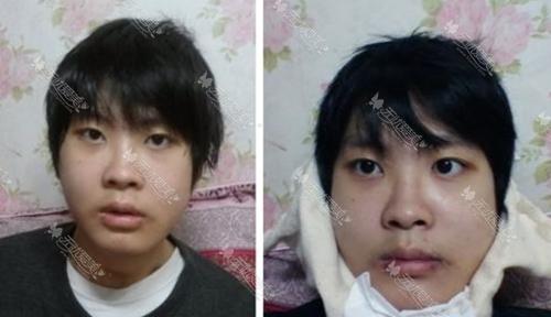 在韩国巴诺巴奇双颚手术后一周