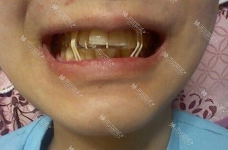 在韩国巴诺巴奇双颚术后牙齿训练
