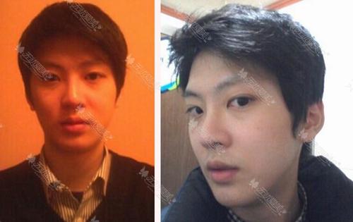 在韩国巴诺巴奇双颚术后十一个月