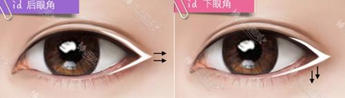 韩国id整形医院立体开眼角手术
