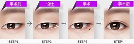 韩国id整形医院立体开眼角手术方法