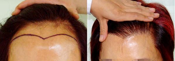 重庆迪邦女性植发