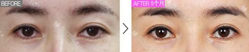 大小眼双眼皮修复