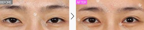 双眼皮线条松开修复案例