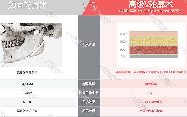 一般颜面手术与韩国TL整形医院高级v脸轮廓术