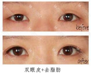 武汉美基元汪洋双眼皮手术