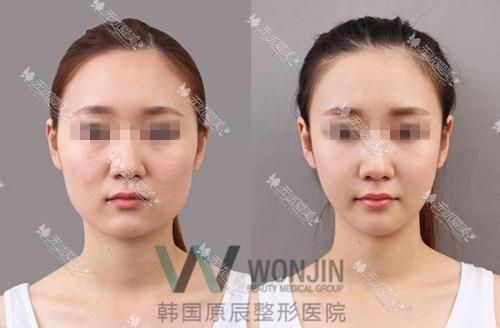 韩国原辰下颌角整形案例