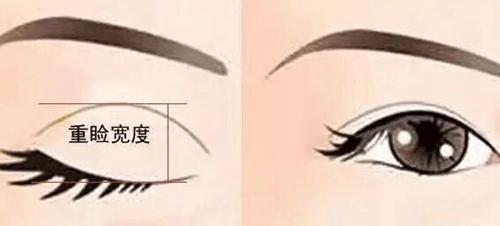 韩国青春整形双眼皮手术