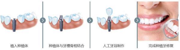 杭州时光种植牙步骤