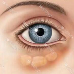 眼袋手术后复发