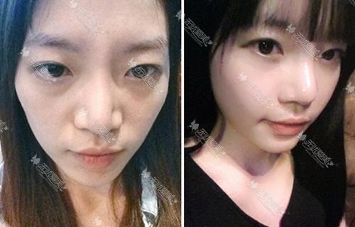 韩国id整形医院面部脂肪填充案例