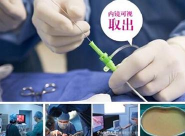 广州市荔湾区人民医院整形医院奥美定取出手术