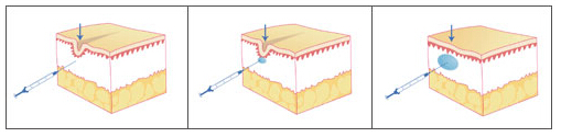 拉萨维多利亚注射玻尿酸