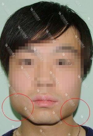 男士下颌角整形