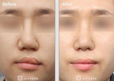韩国mvp整形医院唇腭裂修复手术案例