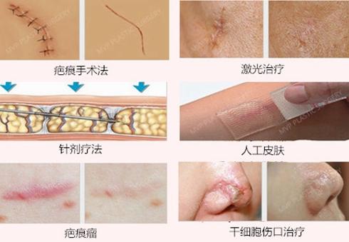 韩国mvp疤痕切除术