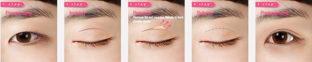 艾尚柏雅韩式双眼皮