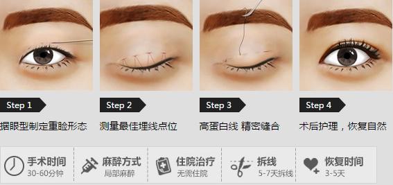 南宁梦想整形韩式双眼皮