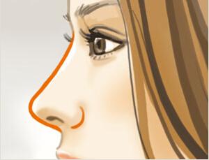 南宁梦想隆鼻手术