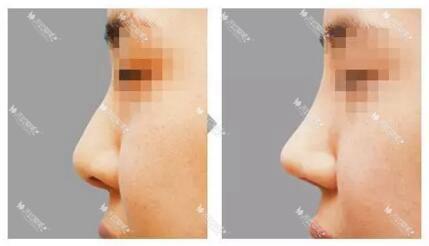 成都驻颜假体隆鼻效果