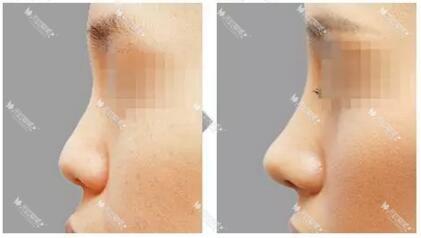 成都驻颜自体软骨隆鼻效果