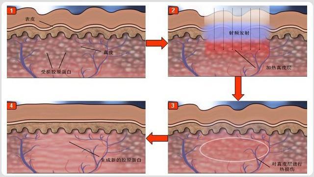 韩国首尔丽格射频紧肤过程