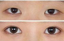 做双眼皮效果对比图