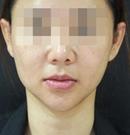 韩国首尔丽格面部提升对比案例