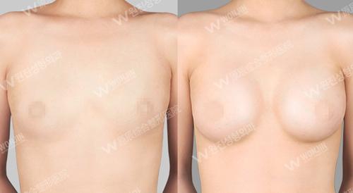 韩国原辰整形医院脂自体脂肪肪移丰胸