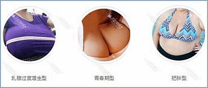 乳房肥大三种类型