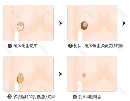 南京韩辰乳房缩小