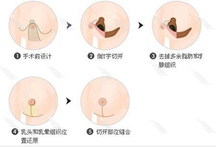 南京韩辰乳房缩小术方法