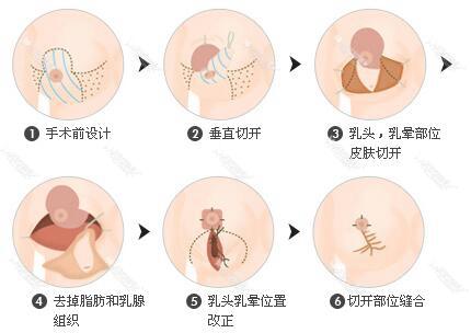 南京韩辰乳房缩小术