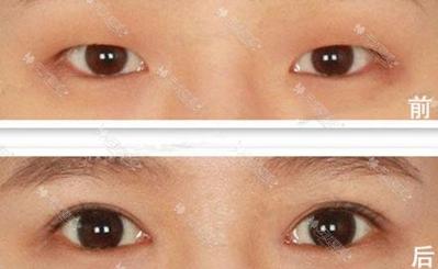 兰州亚韩眼部综合手术案例