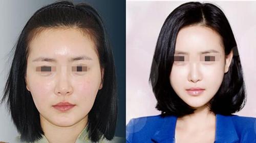 韩国korea整形外科医院