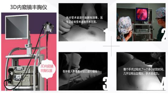 长沙爱思特3D隆胸技术