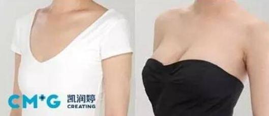 北京凯润婷秋季整形隆胸