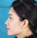 南京维多利亚注射隆鼻+丰下巴对比案例