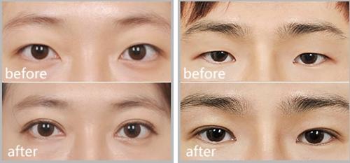武汉美立方双眼皮手术案例