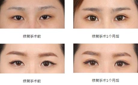 武汉美基元眼部修复手术案例
