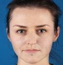 在江苏维多利亚做了面部提升让我年轻10岁