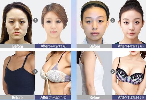 韩国FACE-LINE整形案例
