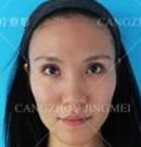 在沧州京美做了全面部自体脂肪填充+假体隆鼻