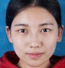95后嫩模在南京维多利亚整形经历 真的美哭了