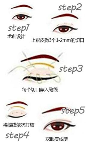 苏州美莱韩式三点双眼皮