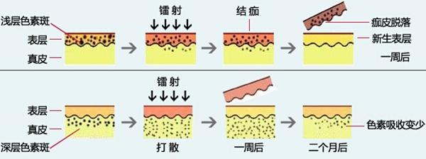 青岛华诺祛黄褐斑原理图
